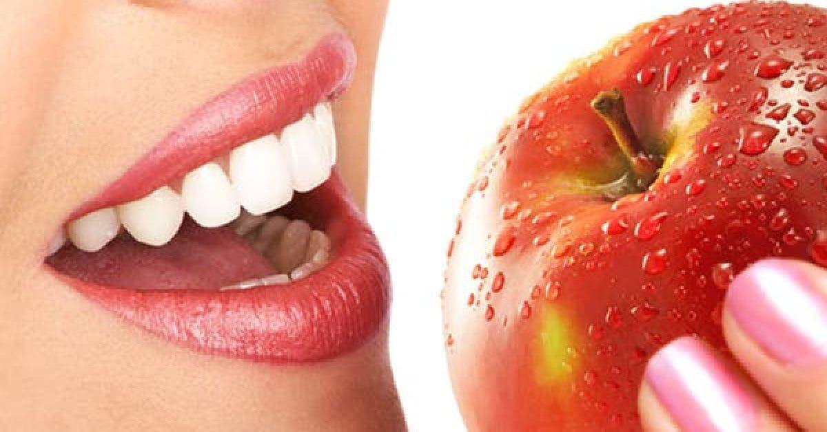 Ces aliments preservent votre sante dentaire 1