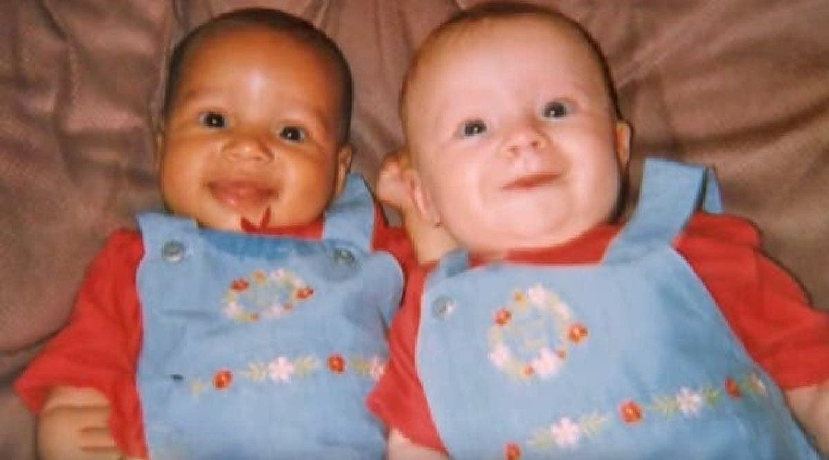 Ces jumelles sont nées avec une couleur de peau différente - 18 ans après, voila à quoi elles ressemblent