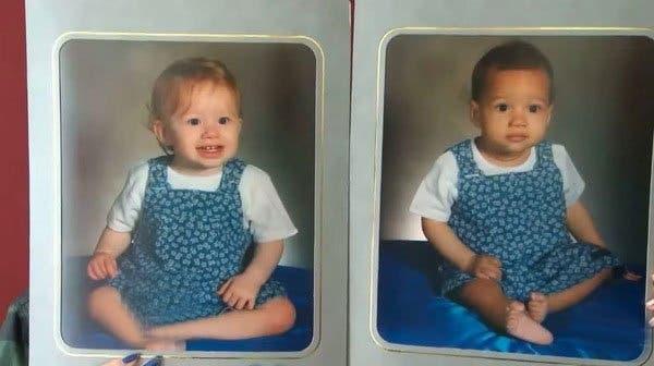 Ces jumelles sont nées avec une couleur de peau différente