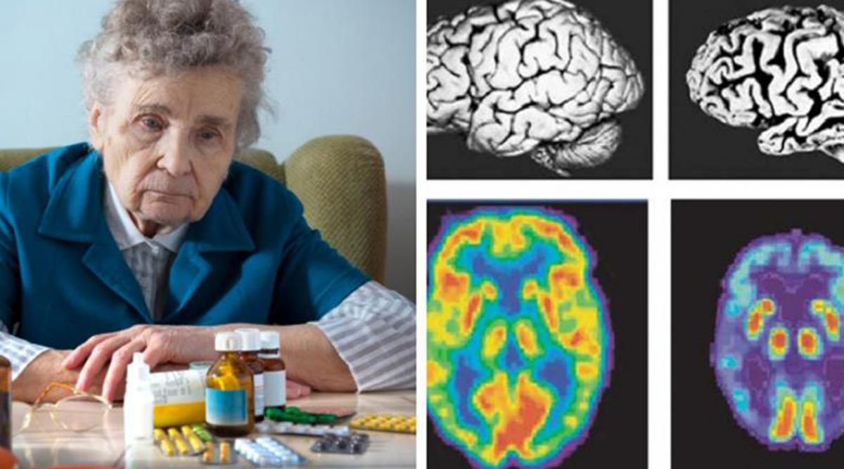 Ces médicaments couramment prescrits peuvent provoquer la démence d'après une étude