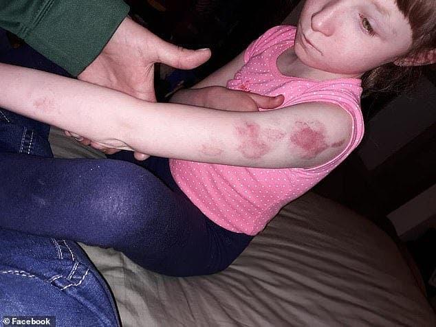 Ces parents étaient furieux lorsqu'ils ont appris que leur fille handicapée a été mordue dans l'autobus scolaire