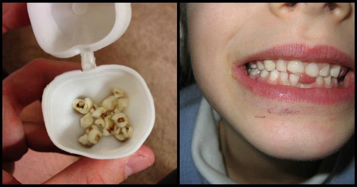 Ces pourquoi les médecins exhortent les parents de garder les dents de lait de leurs enfants