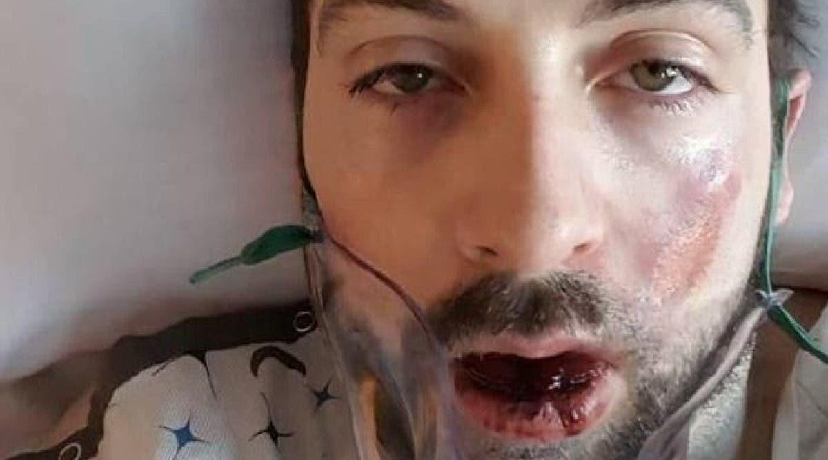 Cet homme ne s'attendait pas à avoir le visage explosé