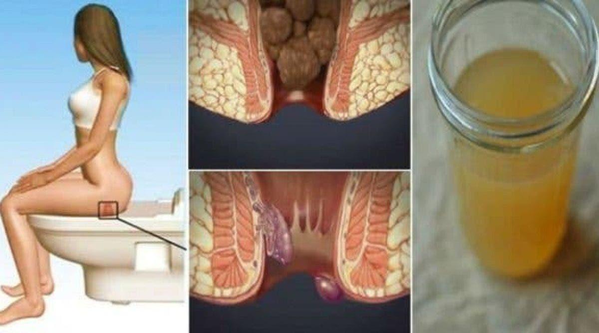 Cet ingrédient qui se trouve dans votre cuisine va guérir vos hémorroïdes en 24 heures