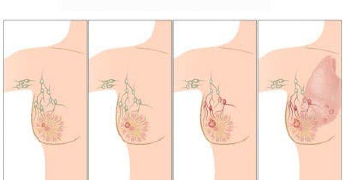 Cette cause du cancer du sein dont personne ne vous parle