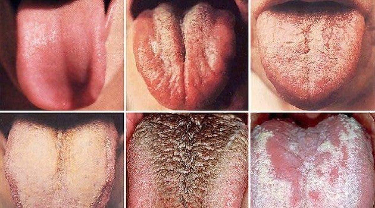 Cette couleur de langue peut révéler un cancer. Faites attention !