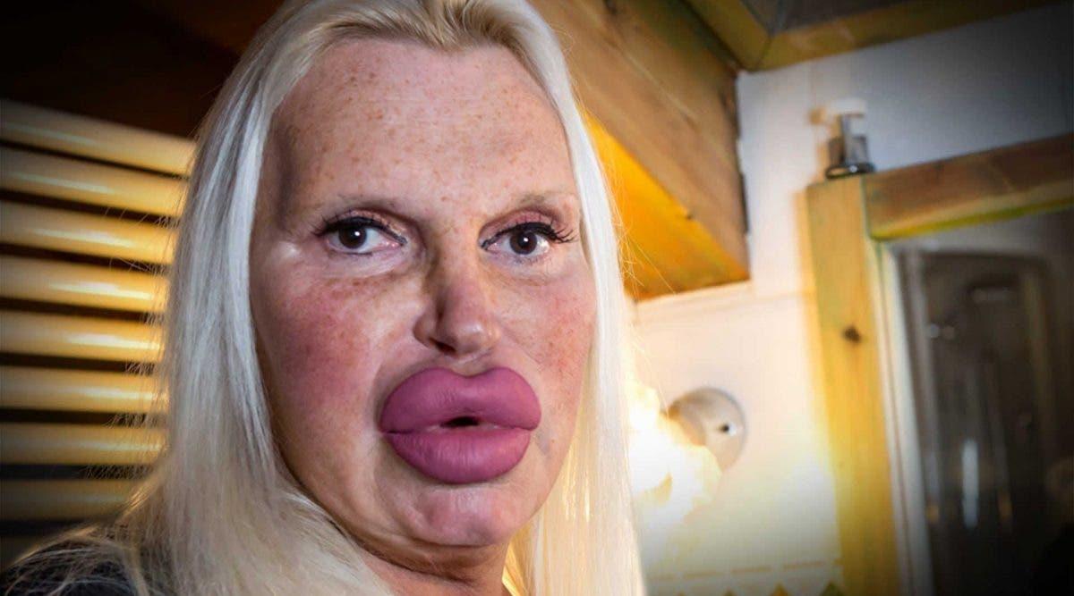 Cette femme a dépensé 46 000 euros en chirurgie pour avoir un visage parfait
