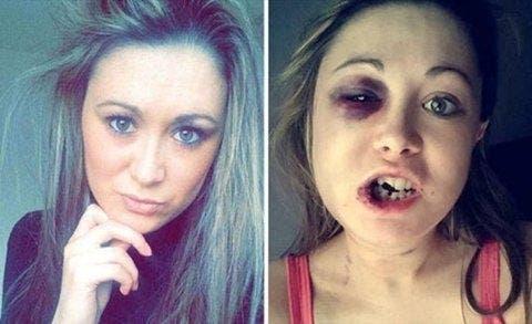 Cette femme a été battu par son petit ami et publie des photos pour dénoncer la violence contre les femmes