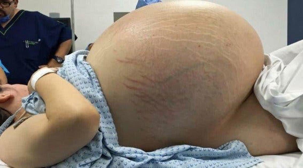 Cette femme a l'air enceinte. mais ce qui se cache dans son ventre est problème que doivent connaître toutes les femmes