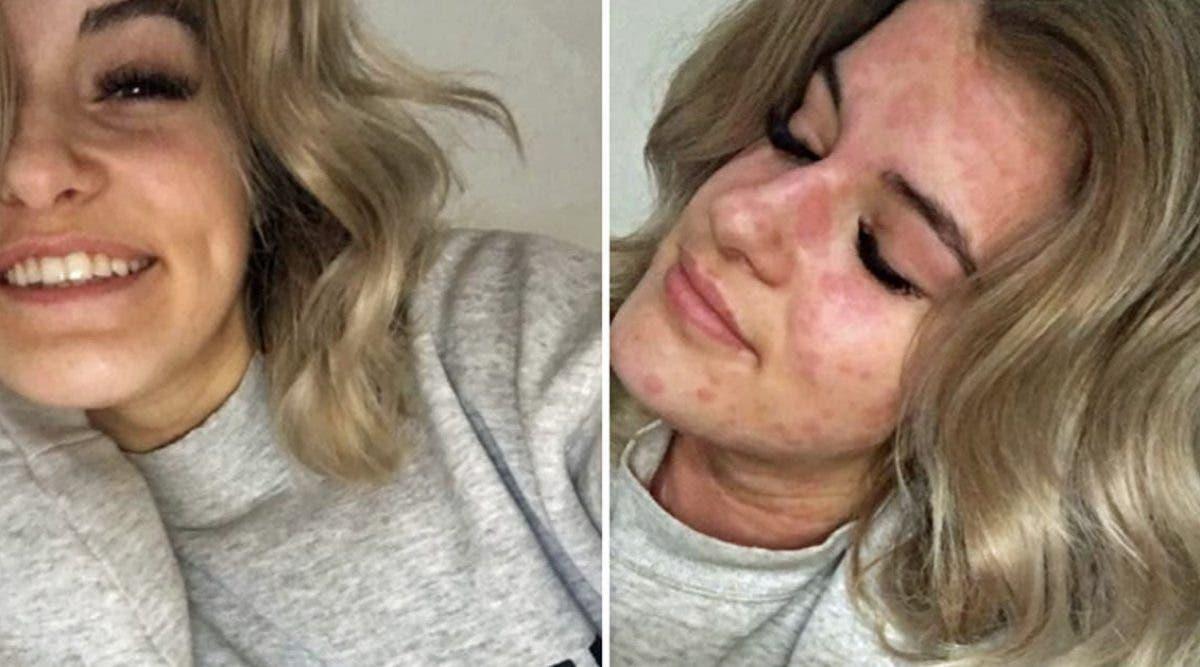 Cette femme de 21 ans est allergique à l'hiver !