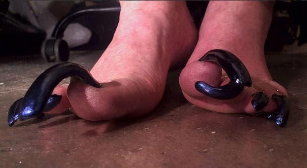 Cette femme ne peut plus porter de chaussures à cause de ses longs ongles