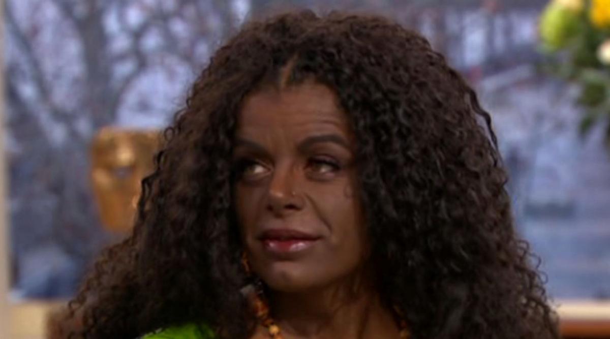 Une femme qui a décidé de changer de couleur de peau par des injections de mélanine pense pouvoir avoir des enfants de couleur noire. Les réseaux sociaux n'ont pas hésité à la critiquer.