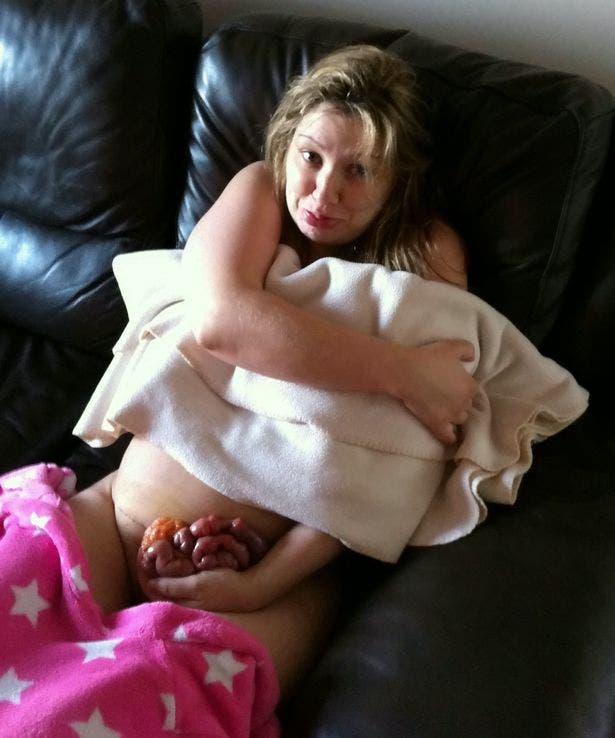 Cette maman a failli perdre ses intestins à cause de la cicatrice de la césarienne qui a éclaté