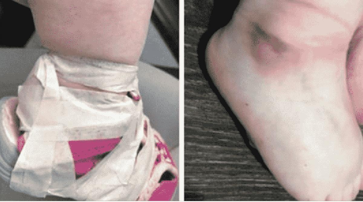 Cette maman est furieuse quand elle découvre les marques laissées par une employée de la garderie sur les pieds de sa fille