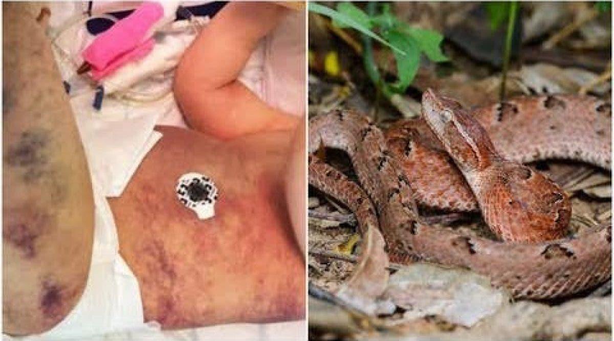 Cette maman pense que son fils de 3 ans a été piqué par une guêpe