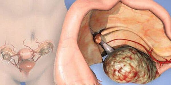 Cette mauvaise habitude provoque le cancer de l'ovaire