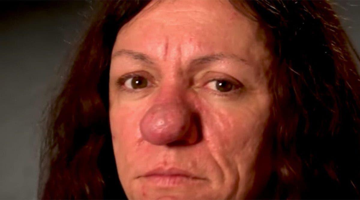 Cette mère n'ose plus sortir dehors à cause de son nez, mais regardez son incroyable transformation