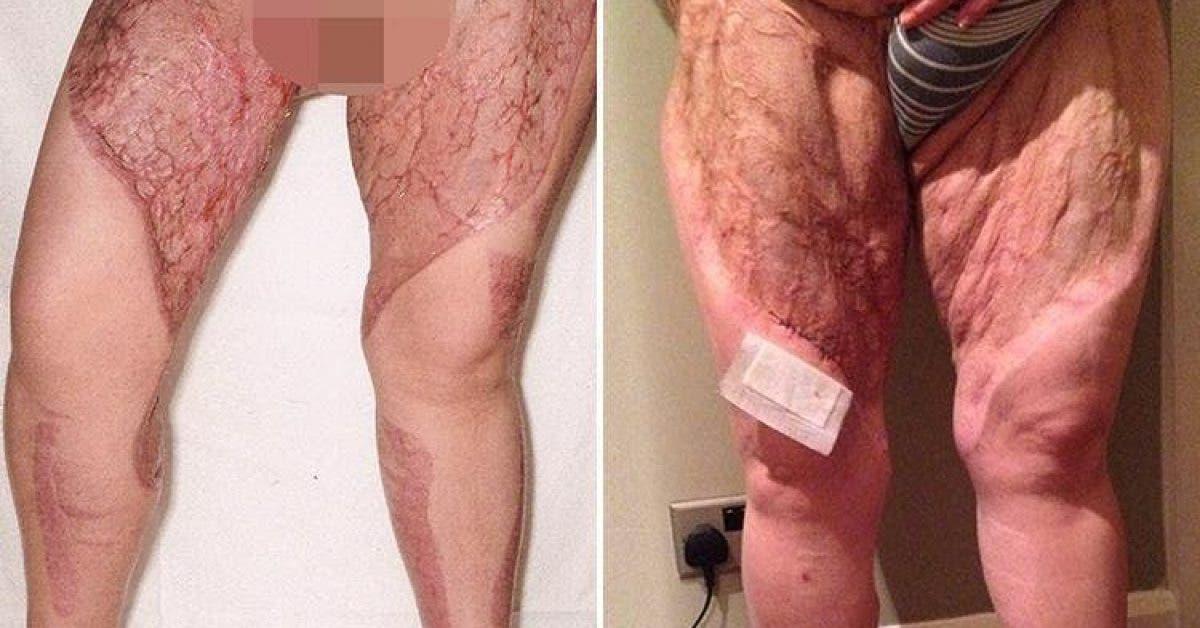 Cette mère perd presque ses jambes à cause d'une habitude courante de la plupart des femmes