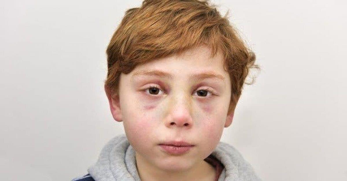 Cette petit garçon de 7 ans a été tué par ses parents - Le médecin découvre un message très émouvante dans la main du petit