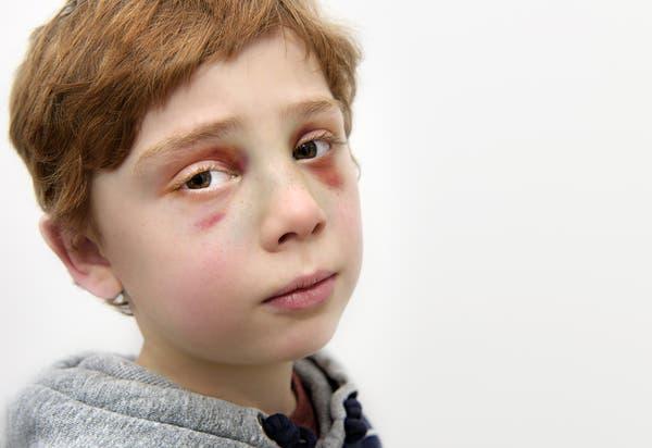Cette petit garcon de 7 ans a ete tue par ses parents6 1