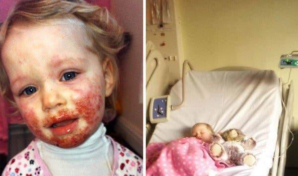Cette petite fille développe une maladie qui ensanglante son visage