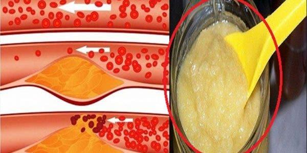 Cette recette naturelle va nettoyer vos artères obstruées