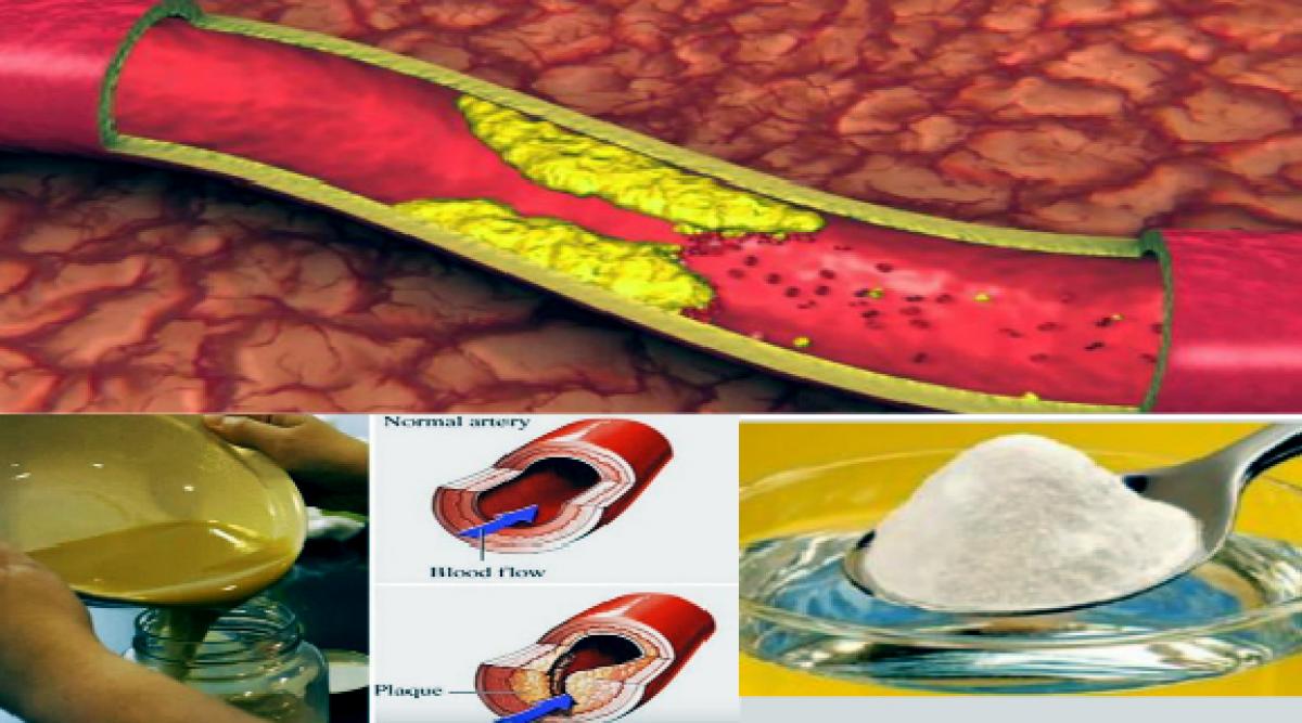 Cette recette naturelle vous aidera à nettoyer vos artères obstruées
