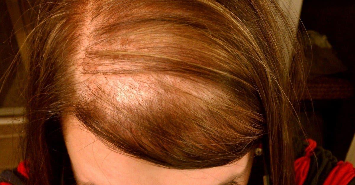 Commencez à consommer ceci si vous perdez vos cheveux ou avez des ongles faibles ou souffrez d'insomnie