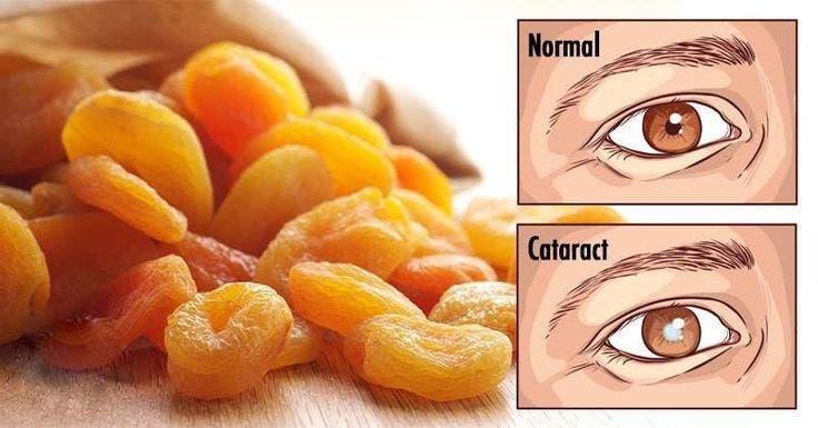 Commencez à manger ces 18 aliments quand vous remarquez que votre vision commence à décliner