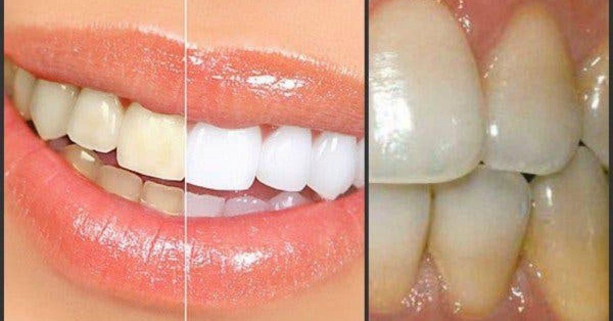 Comment éliminer naturellement la plaque dentaire en 5 minutes, sans partir chez le dentiste !