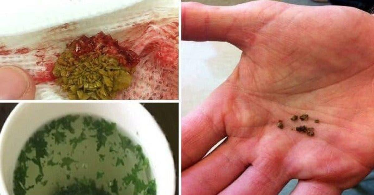 Comment nettoyer vos reins en 5 minutes en utilisant cette boisson naturelle