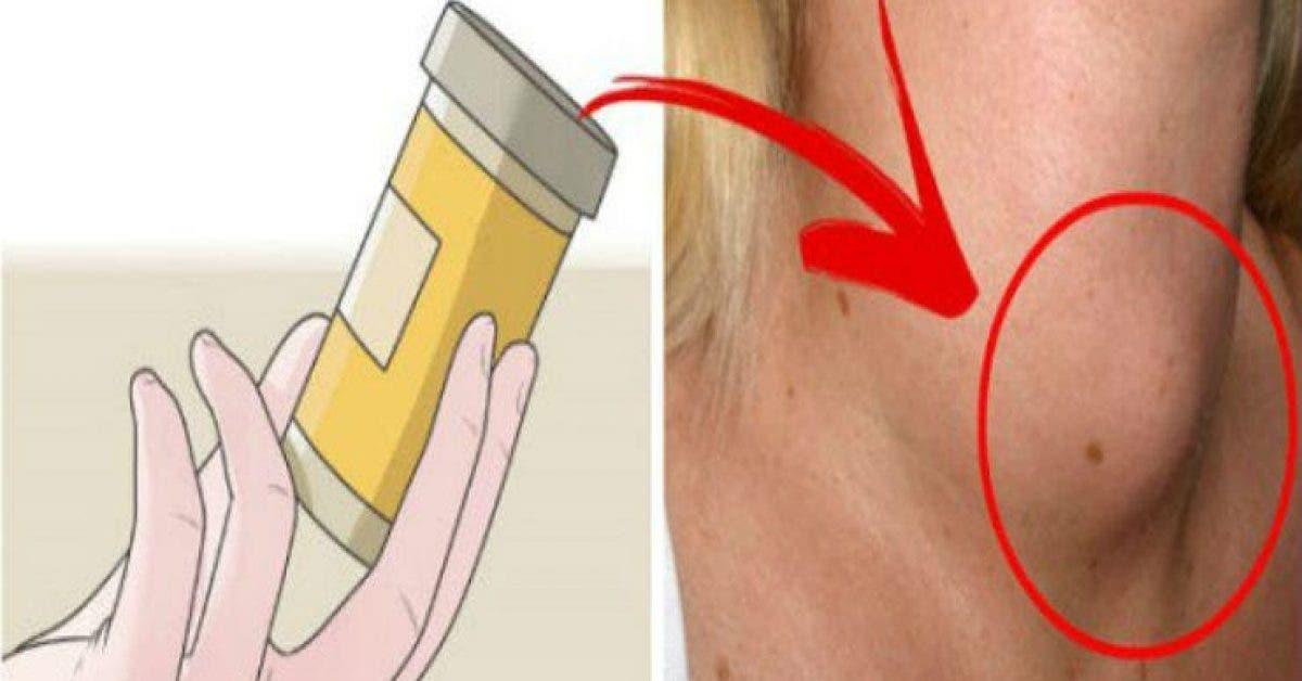 Comment savoir si votre glande thyroide va mal et comment y remedier immediatement 1