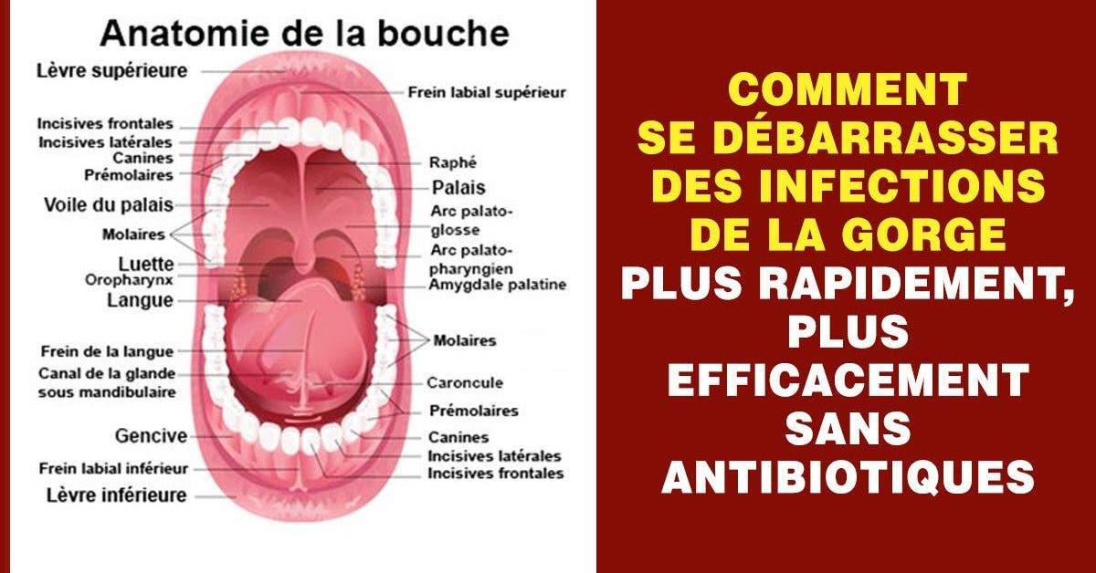 infection de gorge