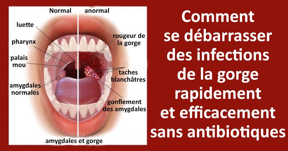 Comment se débarrasser des infections de la gorge rapidement et efficacement sans antibiotiques