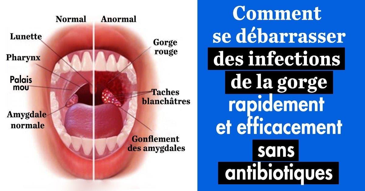8 remèdes naturels pour soigner une infection de la gorge