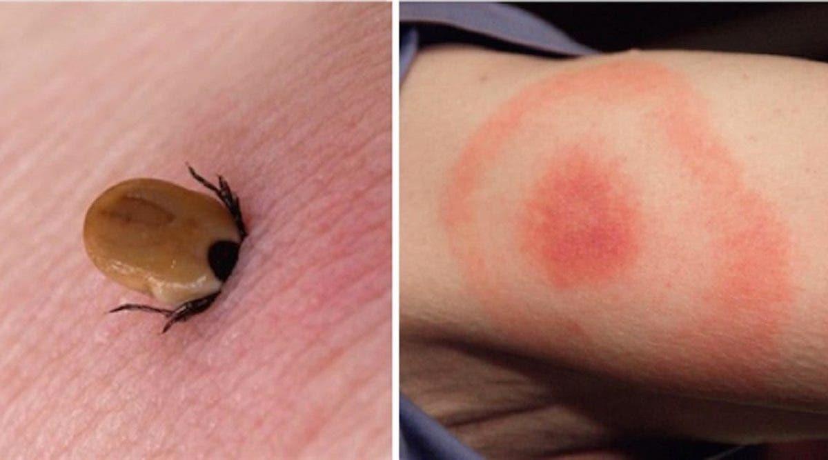 Amateurs de nature, attention aux morsures de tiques, elles peuvent causer une infection appelée la maladie de Lyme ! Mais pas de panique, voici des conseils utiles pour la prévenir.