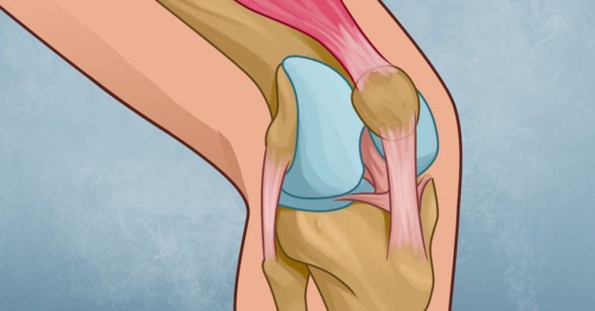 soulager les douleurs aux genoux
