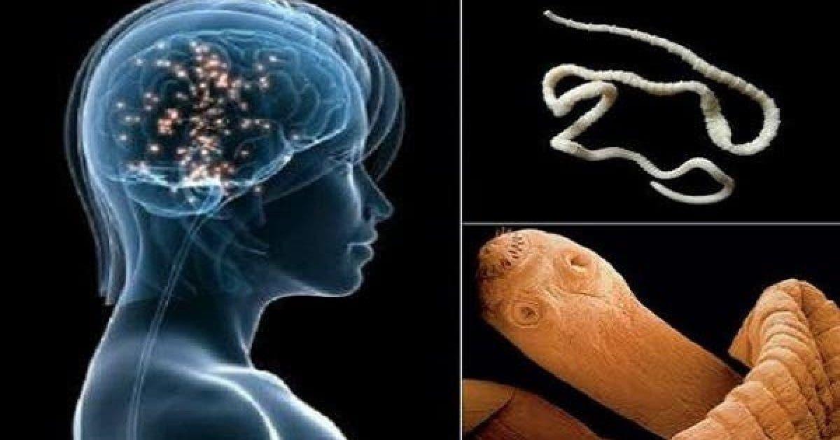 Consommer ces aliments communs peut provoquer lapparition de vers dans le cerveau 1