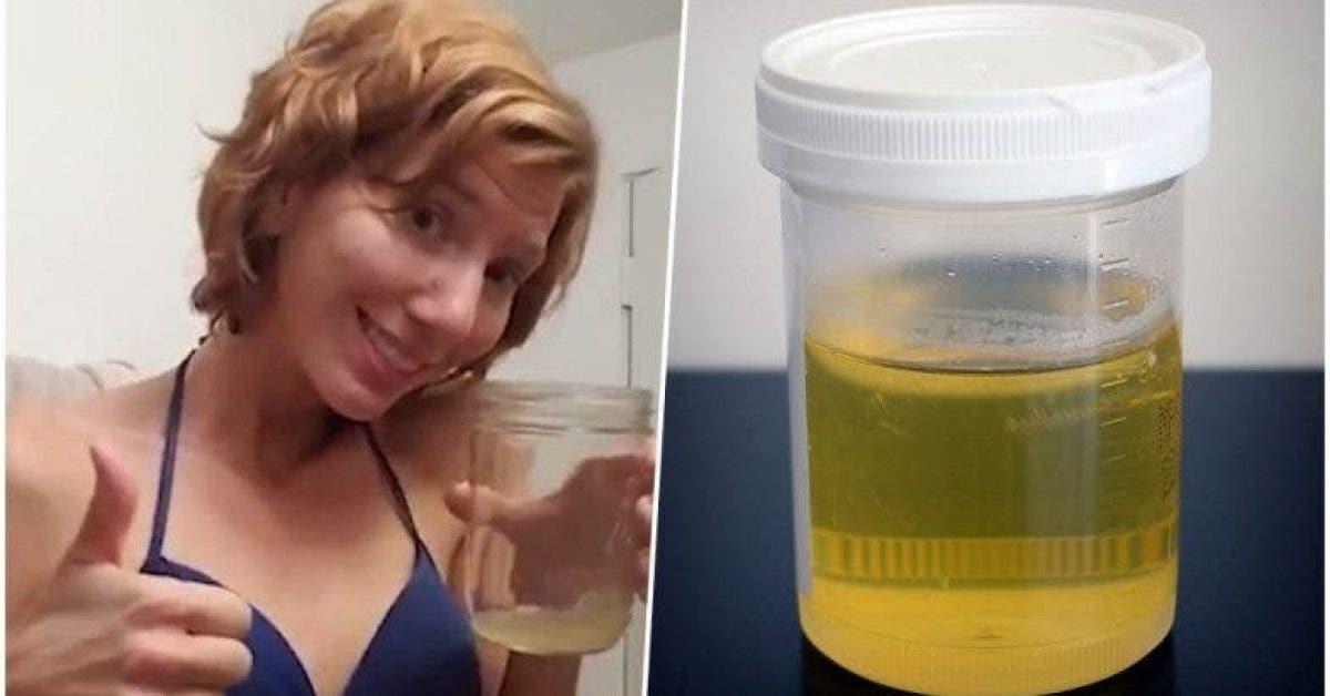 De plus en plus de femmes appliquent de l'urine sur le visage pour avoir une jolie peau