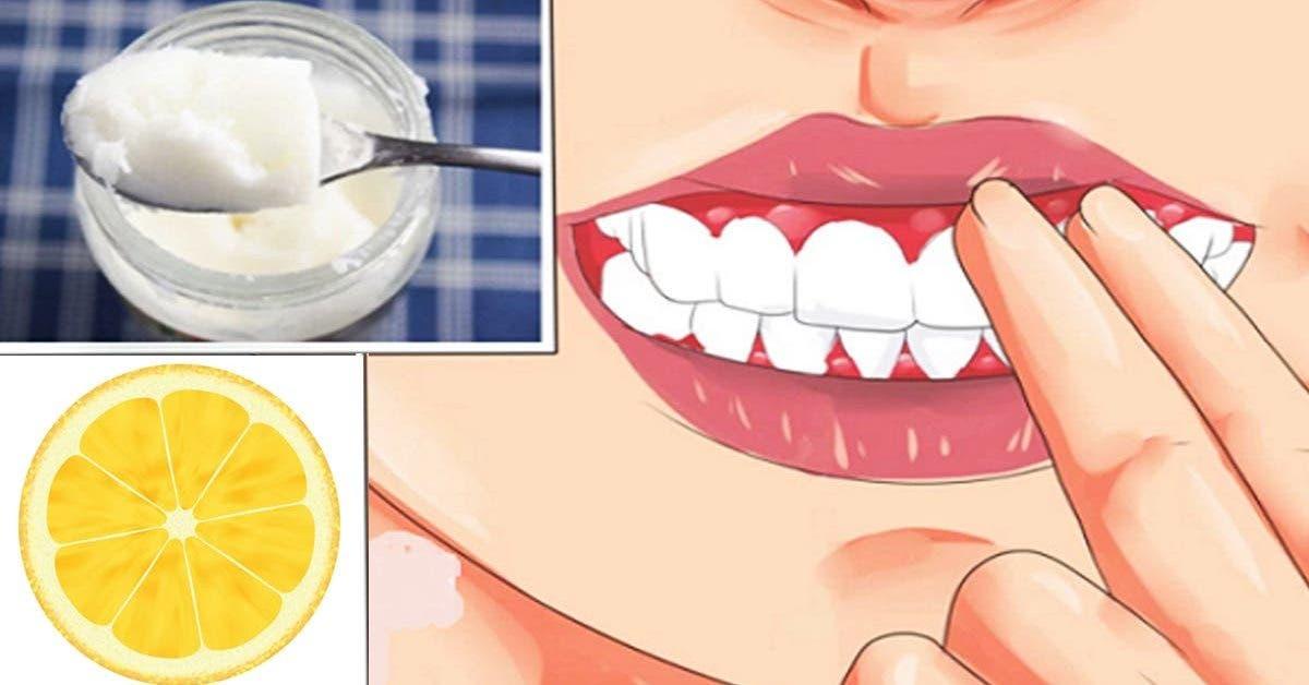 Debarrassez vous de la gingivite et de la mauvaise haleine avec des aliments disponibles dans votre cuisine