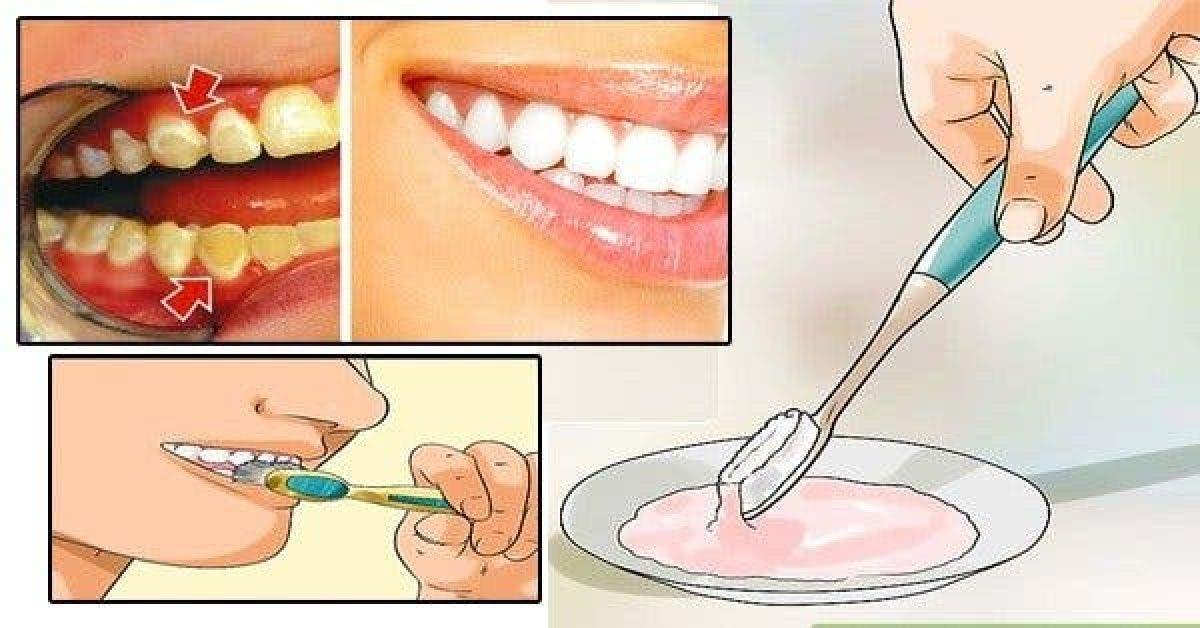 Débarrassez-vous de la plaque dentaire en seulement 5 minutes ! Cela va changer votre vie !