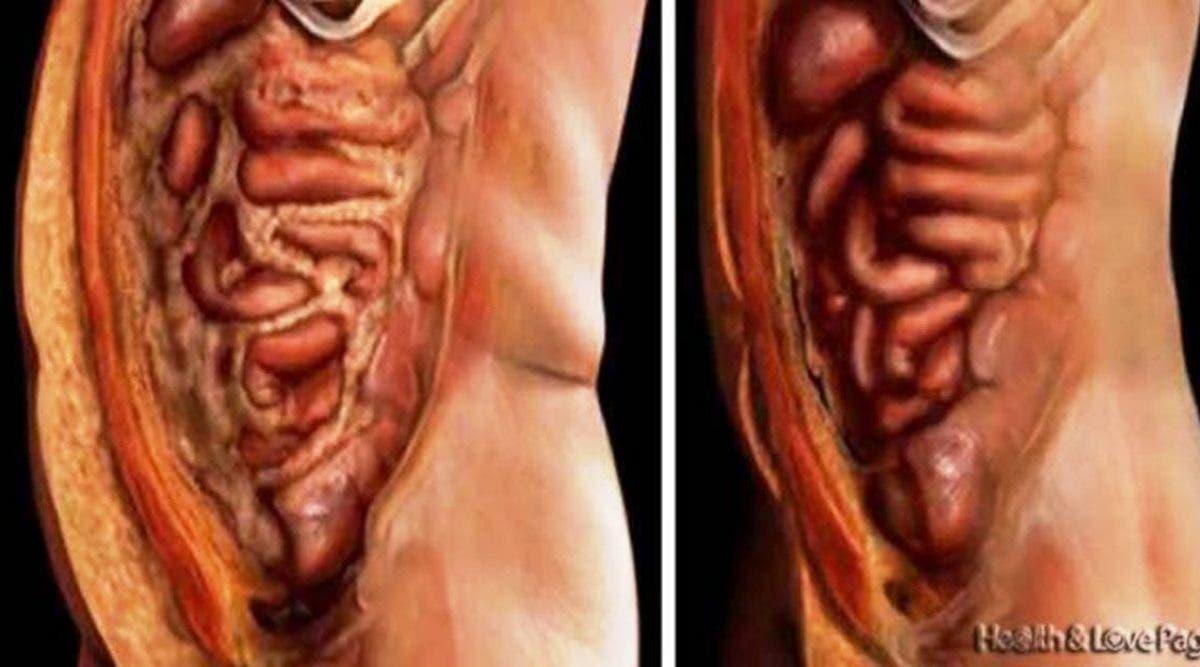Débarrassez-vous de tous les dépôts de graisse et des parasites de votre corps sans effort