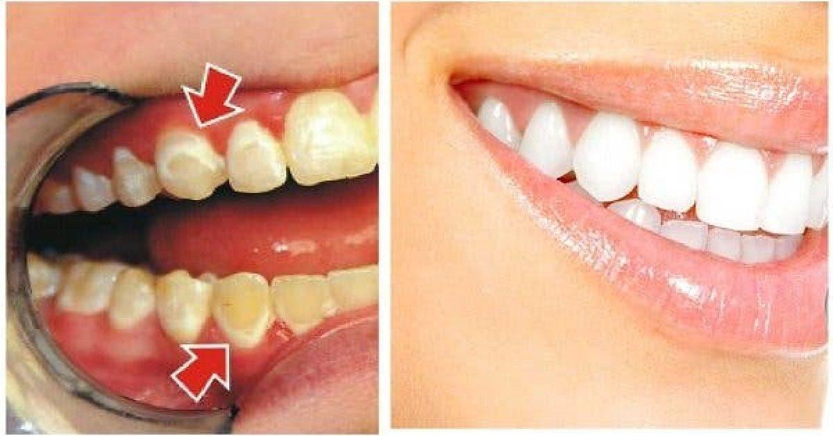 Soyez votre propre dentiste ! Découvrez comment enlever la plaque dentaire en seulement 5 minutes !