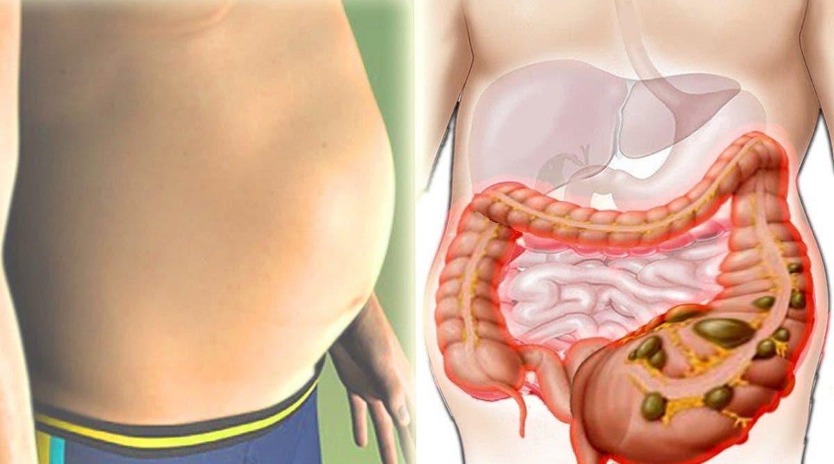 Dégonflez votre ventre