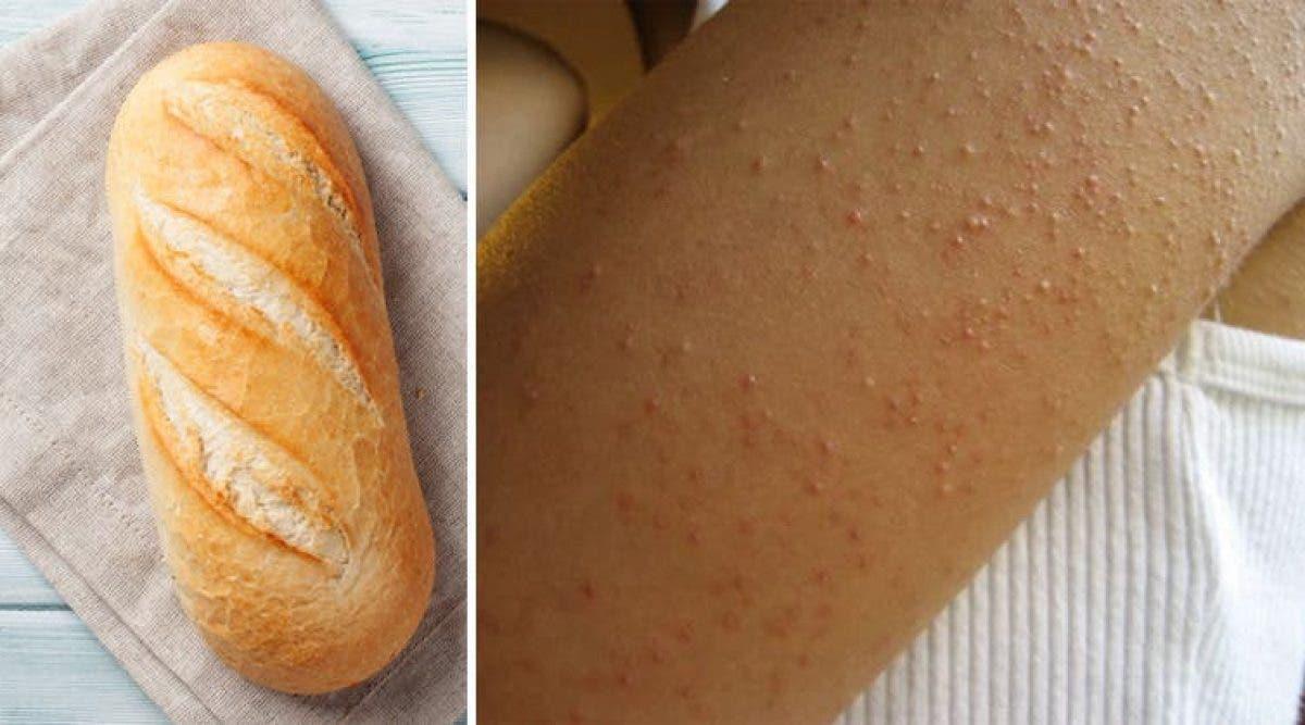Des chercheurs révèlent la véritable cause de l'intolérance au gluten (et le gluten n'est pas la cause)