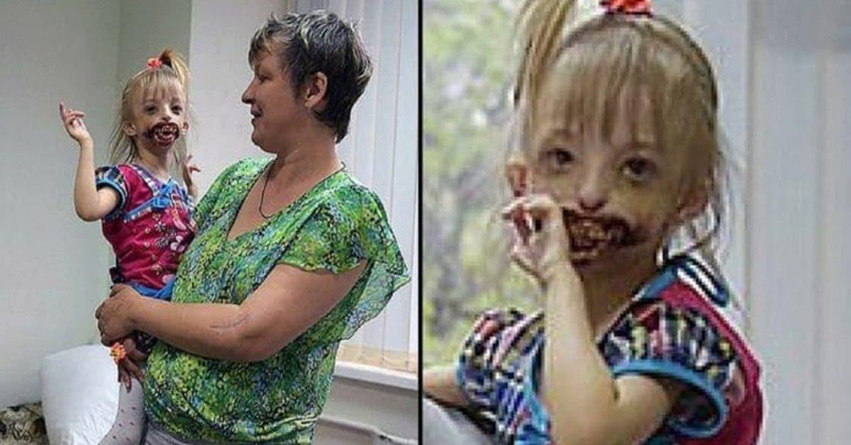 Des médecins demandent à des parents d'abandonner leur bébé car son visage est trop abimé