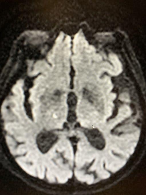 Des médecins ont fait disparaître les tremblements chez les malades de Parkinson