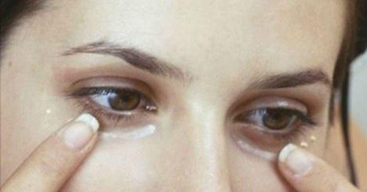 Des millions de femmes appliquent cette creme miracle sous leurs yeux 1