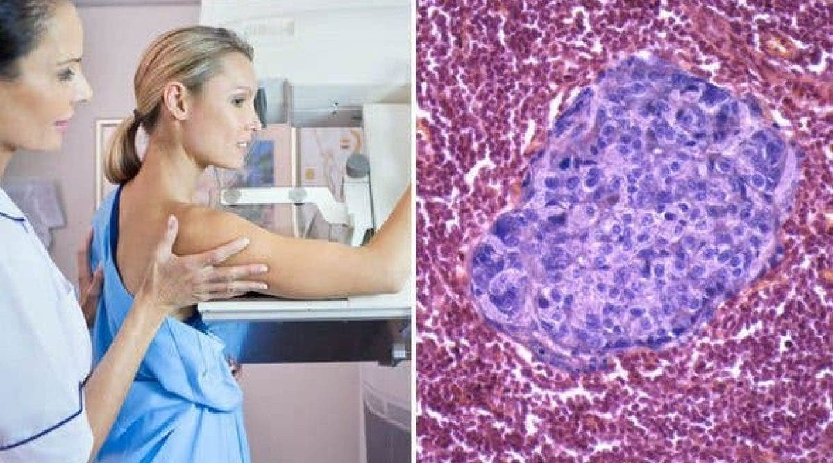 tumeurs du cancer du sein