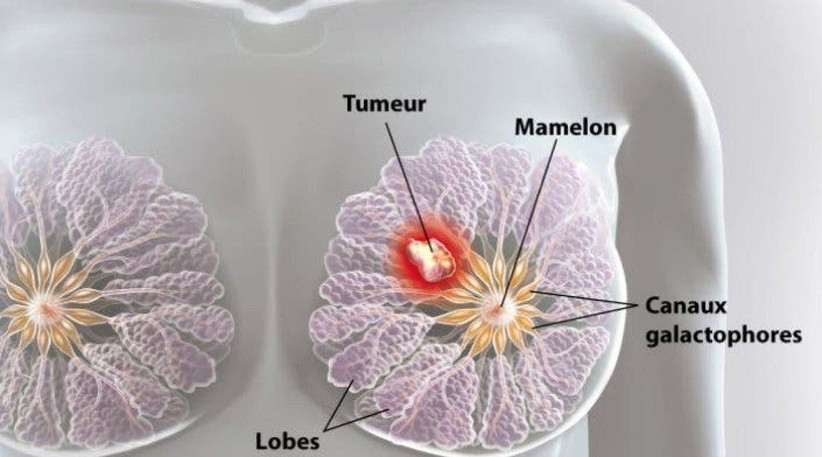 Des scientifiques ont détruit des cellules du cancer du sein en 11 jours